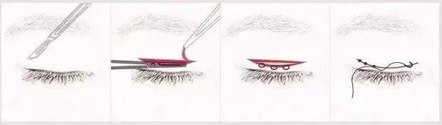 双眼皮手术的避雷手册
