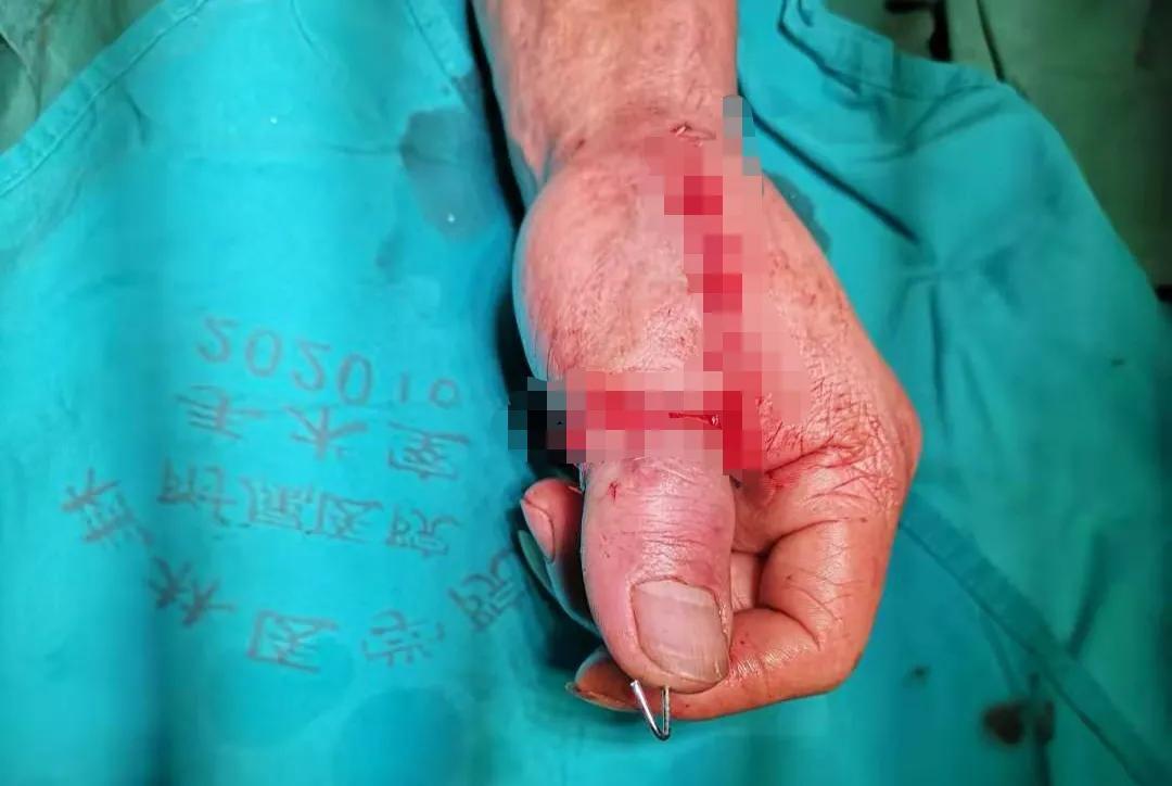大拇指被机器旋转撕脱,医生耗时 3 小时终于完成断指再植