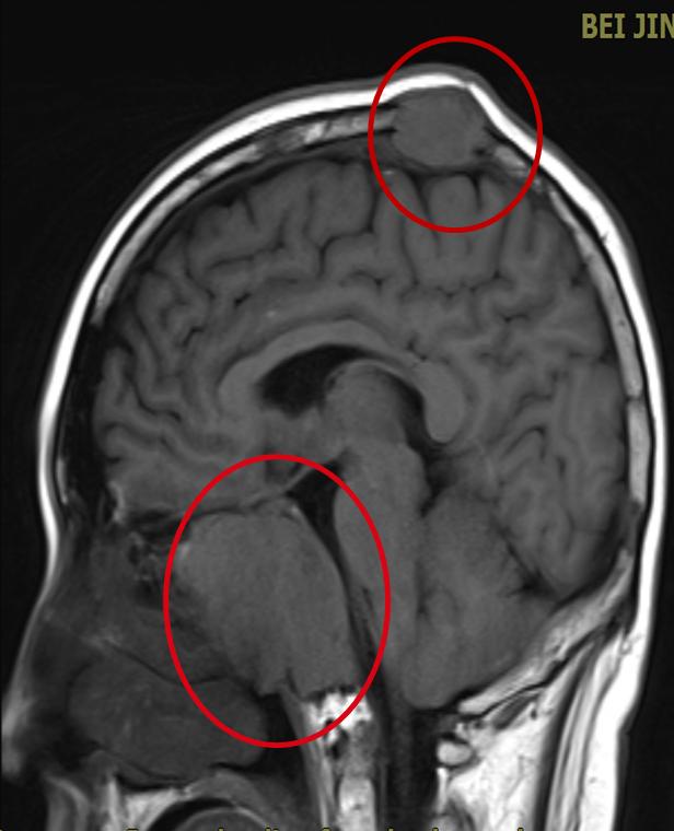 针对复发难治多发性骨髓瘤,CAR-T 的表现如何?
