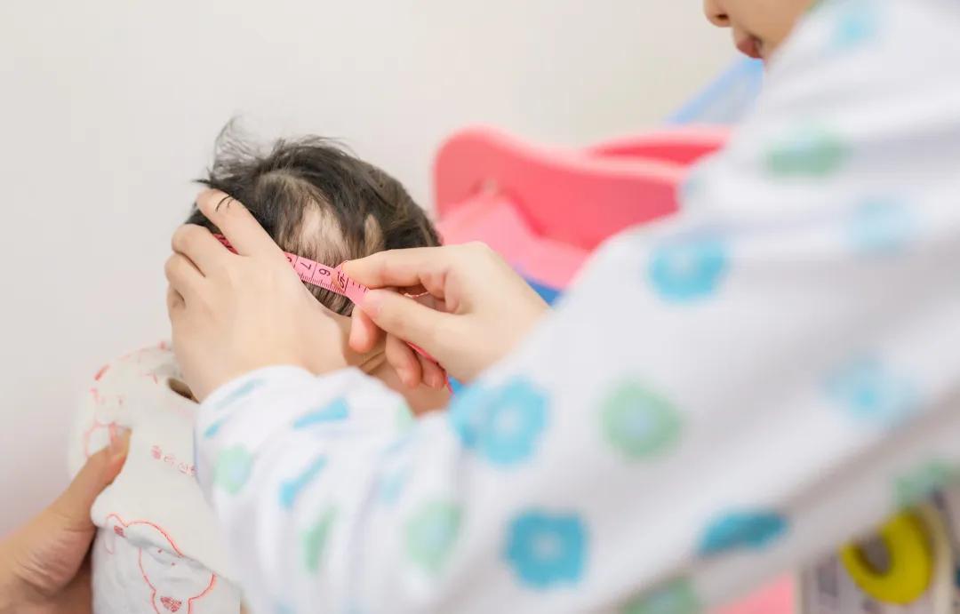 婴幼儿为什么一定要做儿保,儿童保健「保」什么?